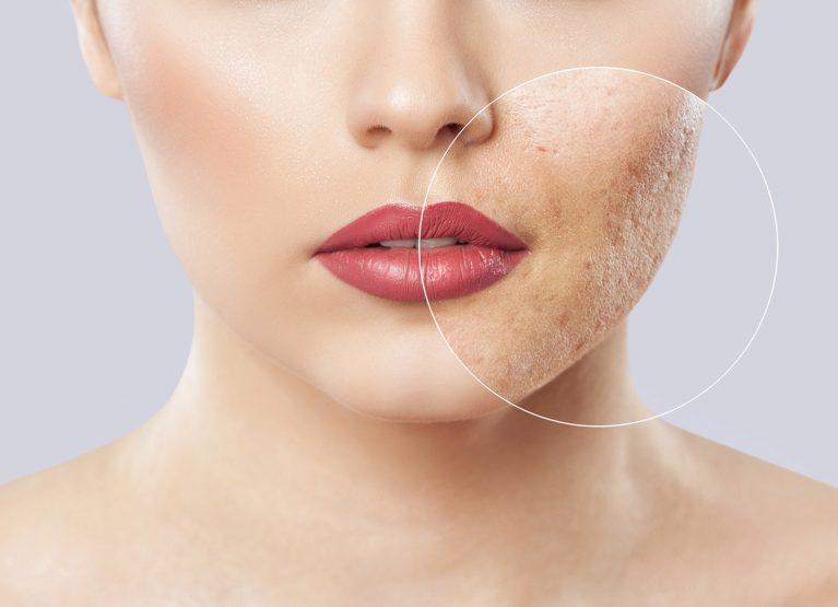 Problemi dermatologici Acne
